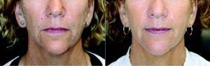 Vitality: Silhouette Instalift™ | Calabasas Style Magazine